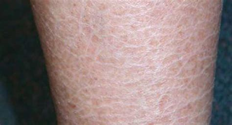 What is Ichthyosis?